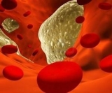 8 лучших продуктов, чтобы защитить кровеносные сосуды от старения